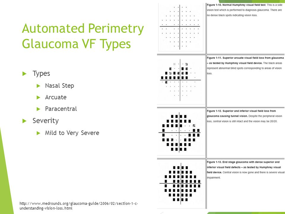 Automated Perimetry Glaucoma VF Types