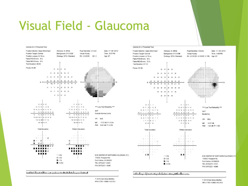 Visual Field - Glaucoma