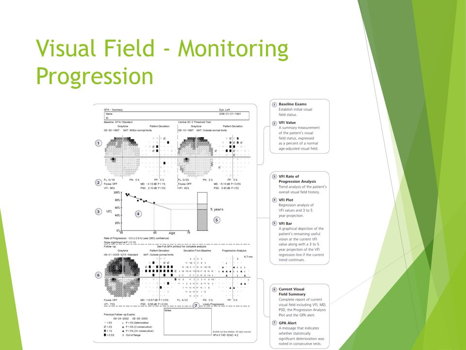 Visual Field - Monitoring Progression