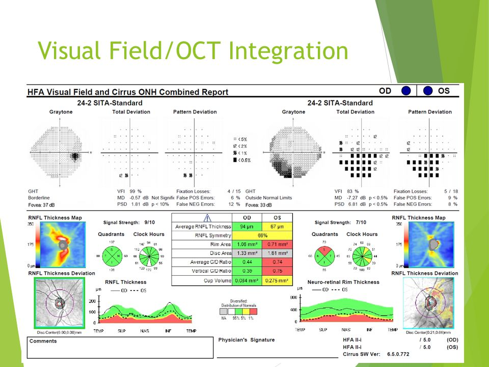 Visual Field/OCT Integration
