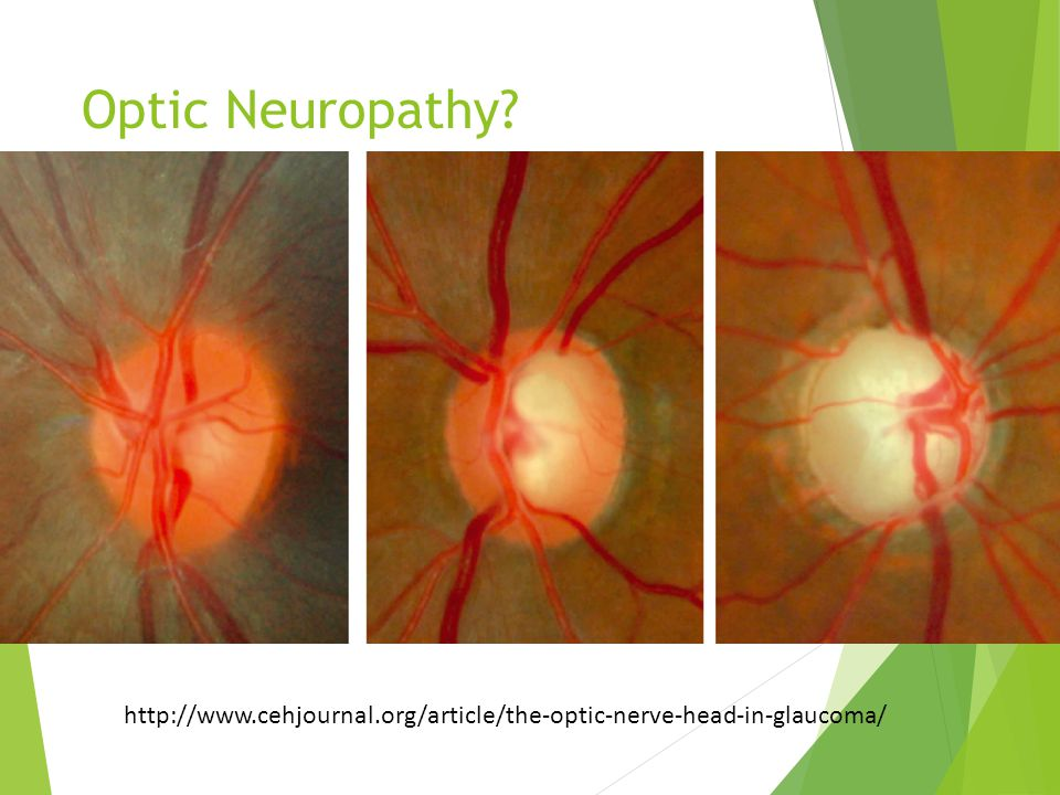 Optic Neuropathy http://www.cehjournal.org/article/the-optic-nerve-head-in-glaucoma/