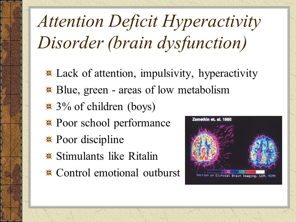 Attention Deficit Hyperactivity Disorder (brain dysfunction)