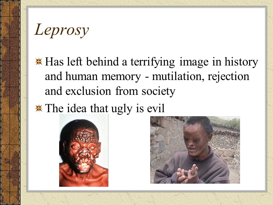 Leprosy Has left behind a terrifying image in history and human memory - mutilation, rejection and exclusion from society.