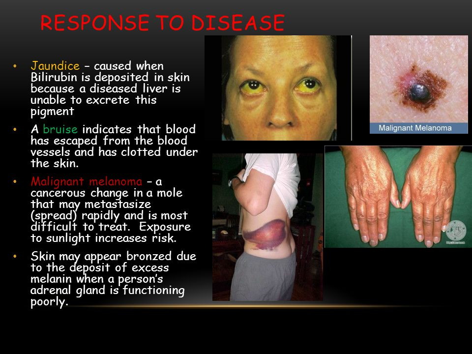Response to Disease Jaundice – caused when Bilirubin is deposited in skin because a diseased liver is unable to excrete this pigment.