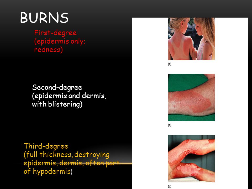 Burns First-degree (epidermis only; redness) Second-degree