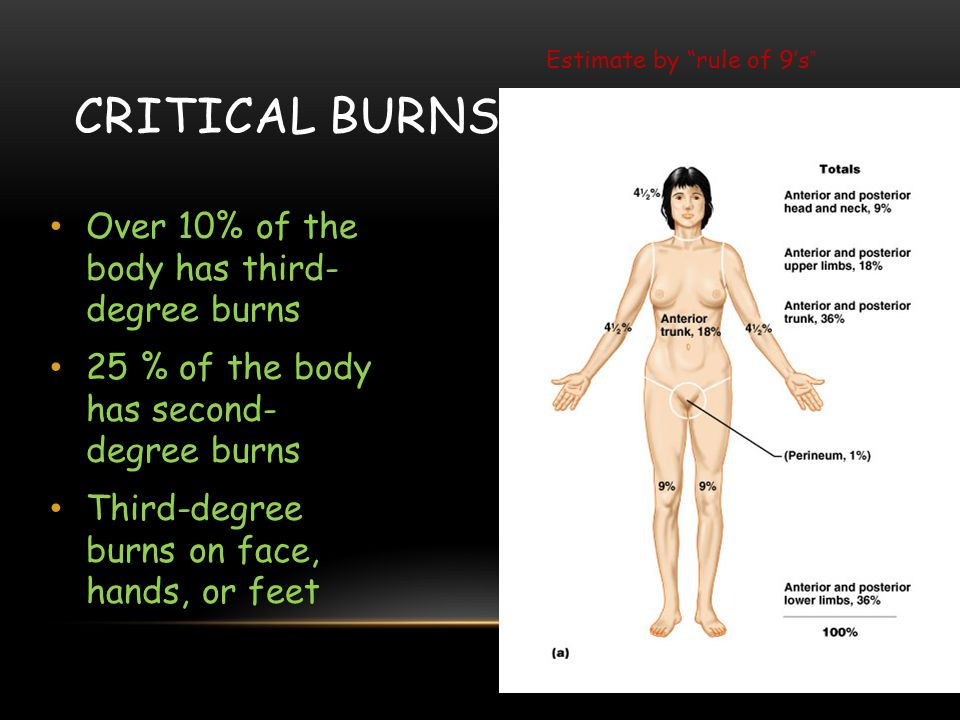 Critical burns Over 10% of the body has third- degree burns