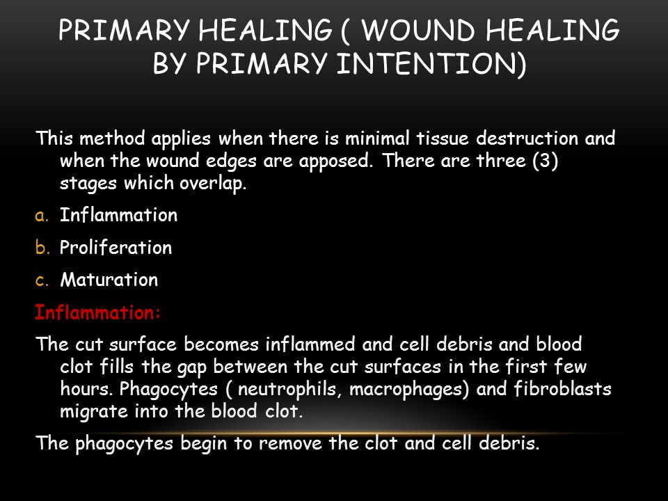 Primary healing ( wound Healing by primary intention)