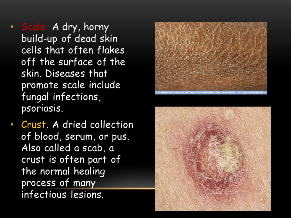 Scale. A dry, horny build-up of dead skin cells that often flakes off the surface of the skin. Diseases that promote scale include fungal infections, psoriasis.