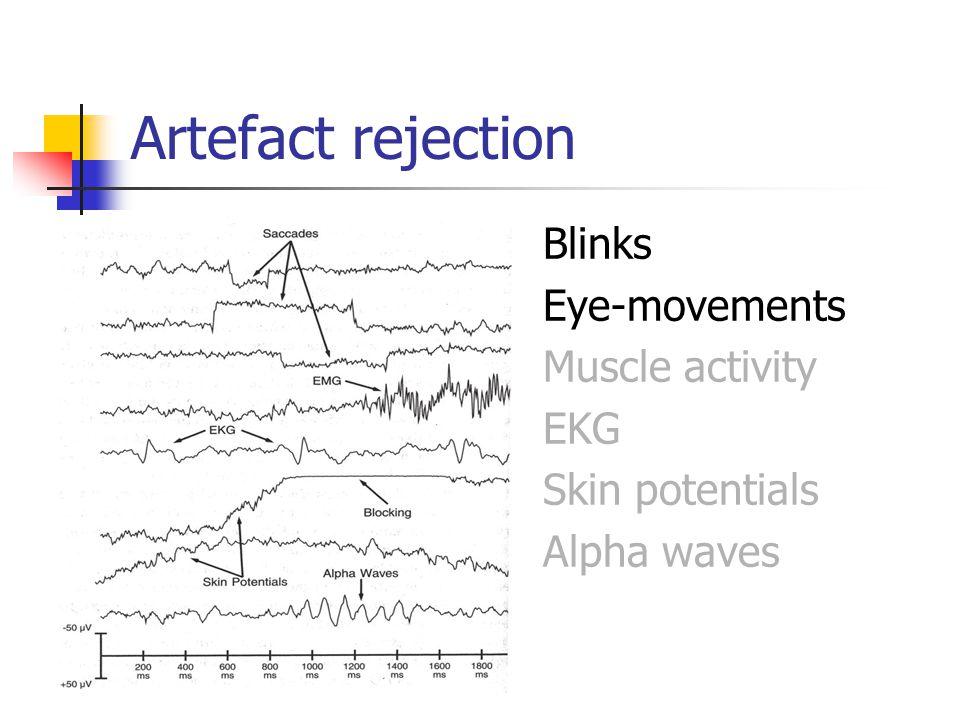 Artefact rejection Blinks Eye-movements Muscle activity EKG