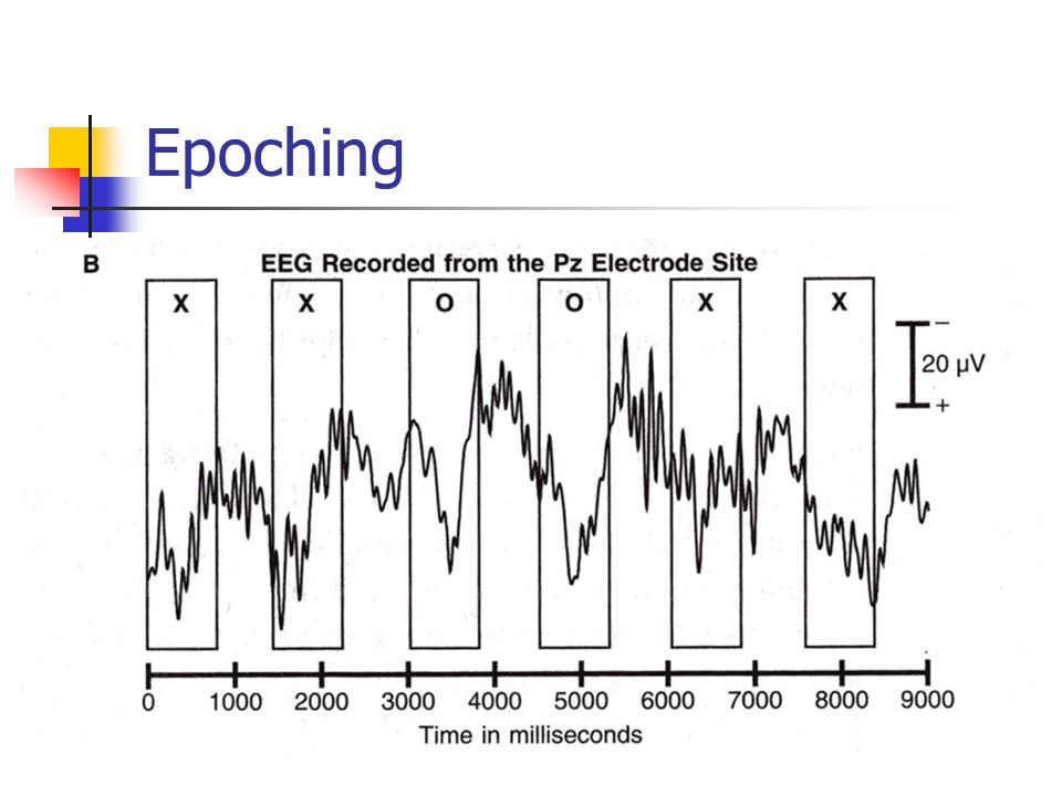 Epoching Epoching splits the data into single trials, each referenced to stimulus presentation.