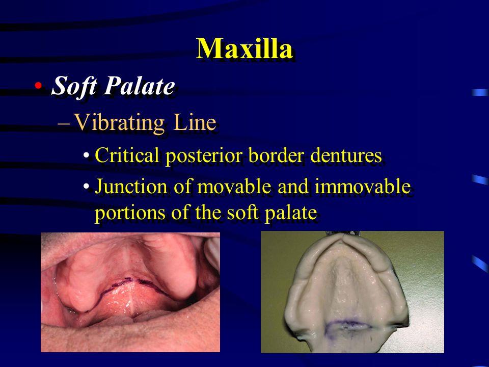 Maxilla Soft Palate Vibrating Line Critical posterior border dentures