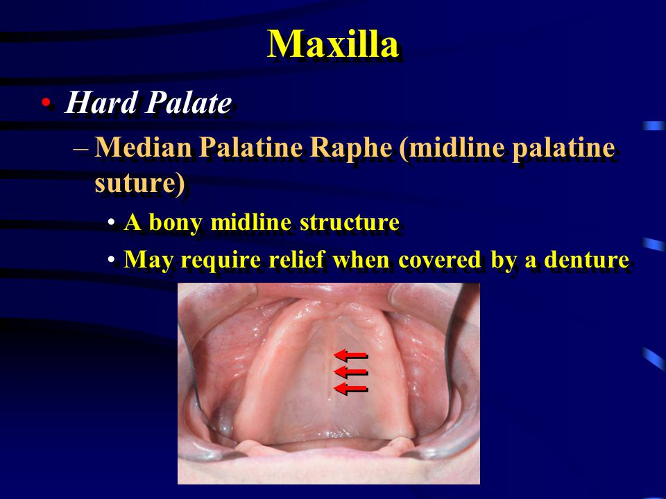 Maxilla Hard Palate Median Palatine Raphe (midline palatine suture)