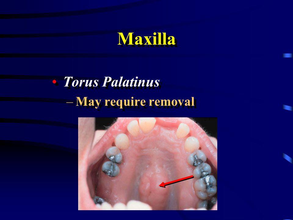 Maxilla Torus Palatinus May require removal