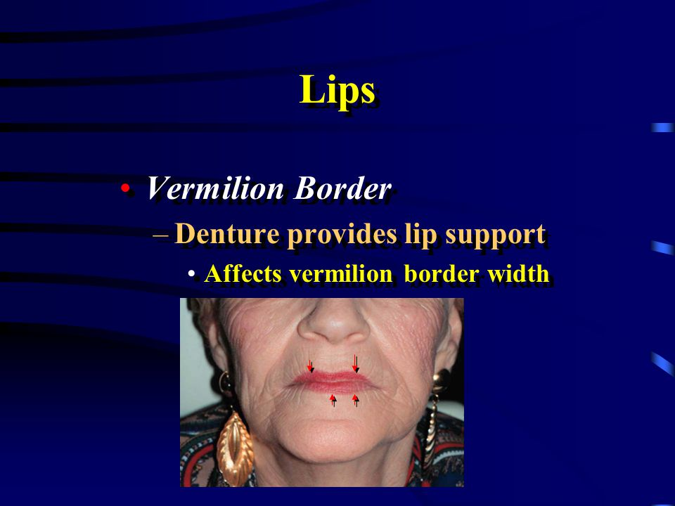 Lips Vermilion Border Denture provides lip support
