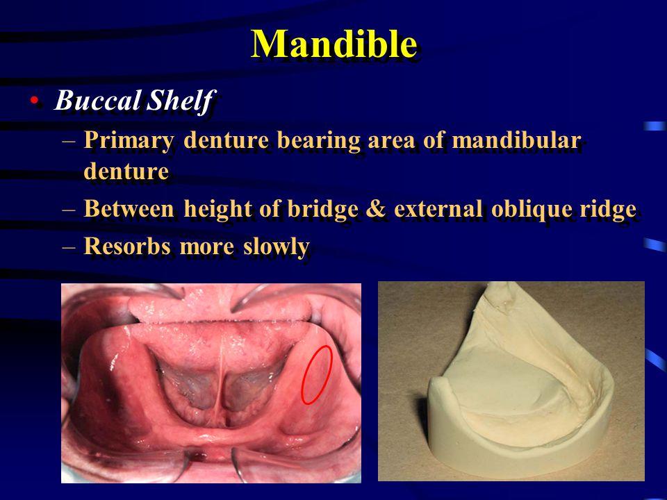 Mandible Buccal Shelf. Primary denture bearing area of mandibular denture. Between height of bridge & external oblique ridge.