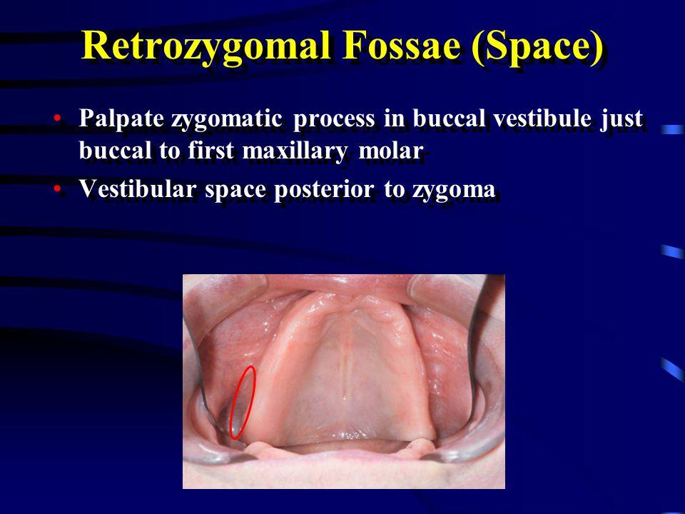 Retrozygomal Fossae (Space)