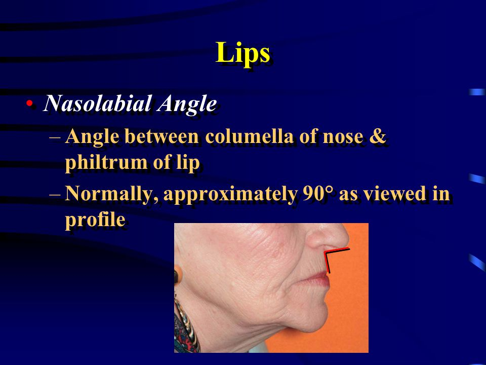 Lips Nasolabial Angle. Angle between columella of nose & philtrum of lip.