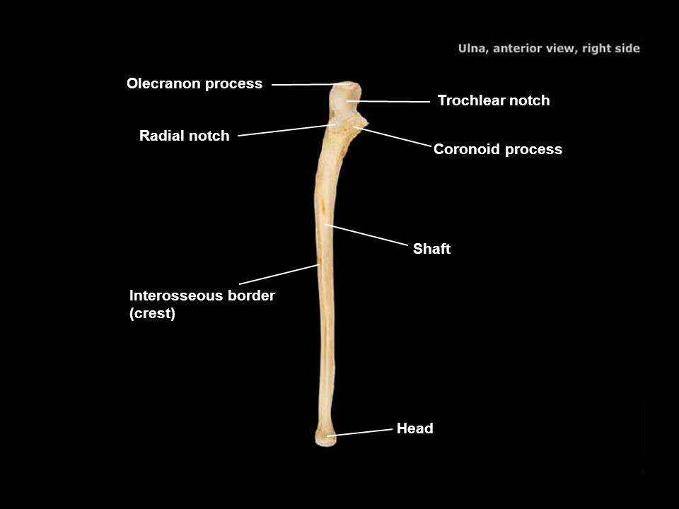 Olecranon process Trochlear notch. Radial notch. Coronoid process. Shaft. Interosseous border (crest)