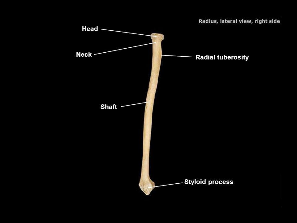 Head Neck Radial tuberosity Shaft Styloid process