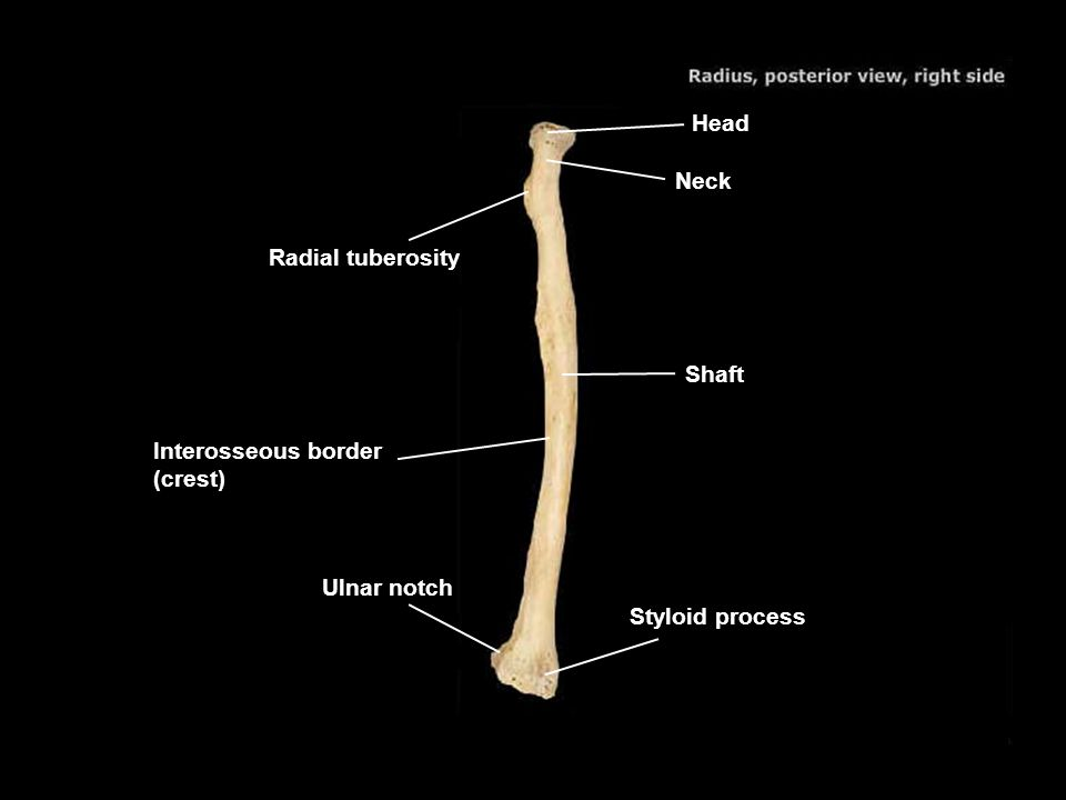 Head Neck Radial tuberosity Shaft Interosseous border (crest) Ulnar notch Styloid process