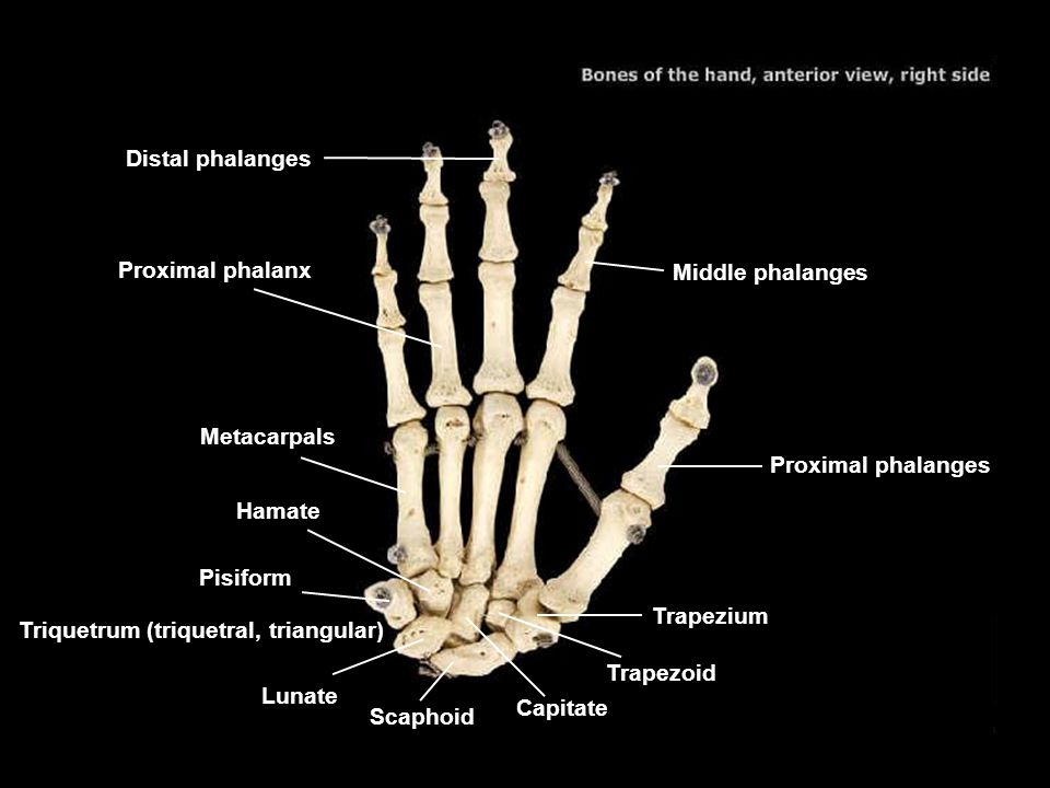 Distal phalanges Proximal phalanx. Middle phalanges. Metacarpals. Proximal phalanges. Hamate. Pisiform.