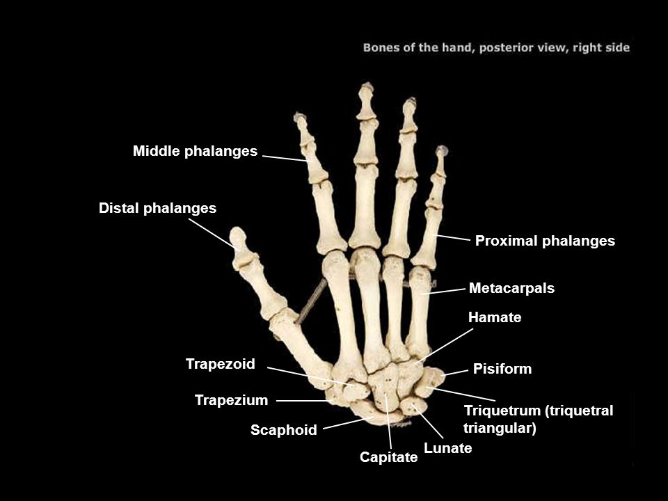 Middle phalanges Distal phalanges. Proximal phalanges. Metacarpals. Hamate. Trapezoid. Pisiform.