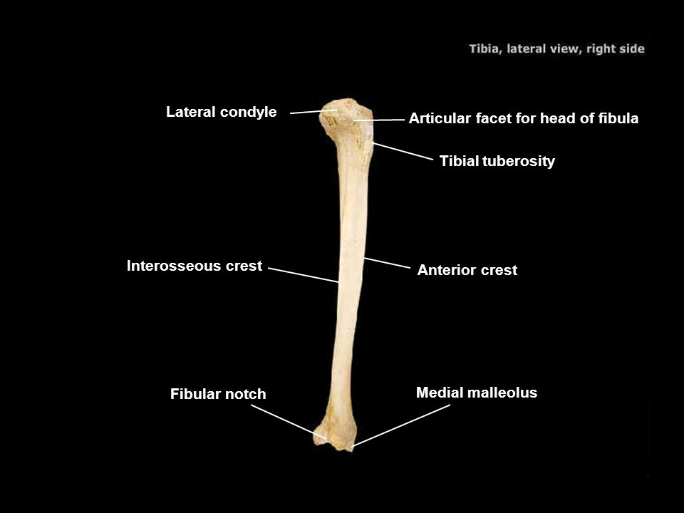 Lateral condyle Articular facet for head of fibula. Tibial tuberosity. Interosseous crest. Anterior crest.
