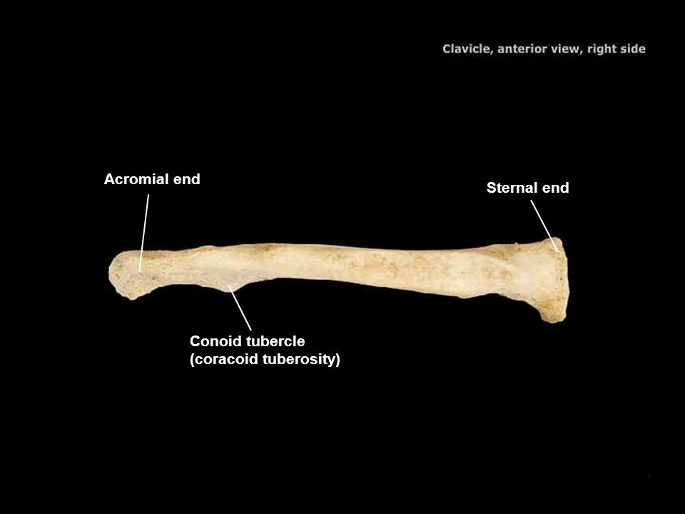 Acromial end Sternal end Conoid tubercle (coracoid tuberosity)