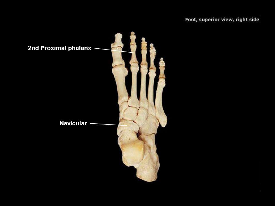 2nd Proximal phalanx Navicular 51