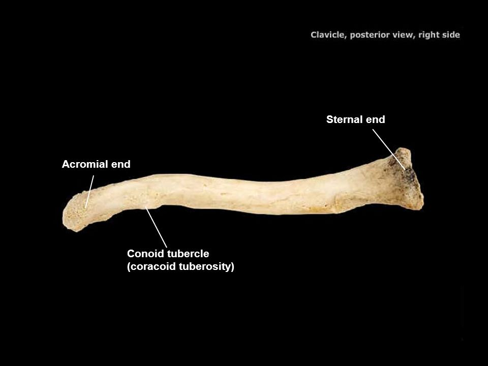 Sternal end Acromial end Conoid tubercle (coracoid tuberosity)