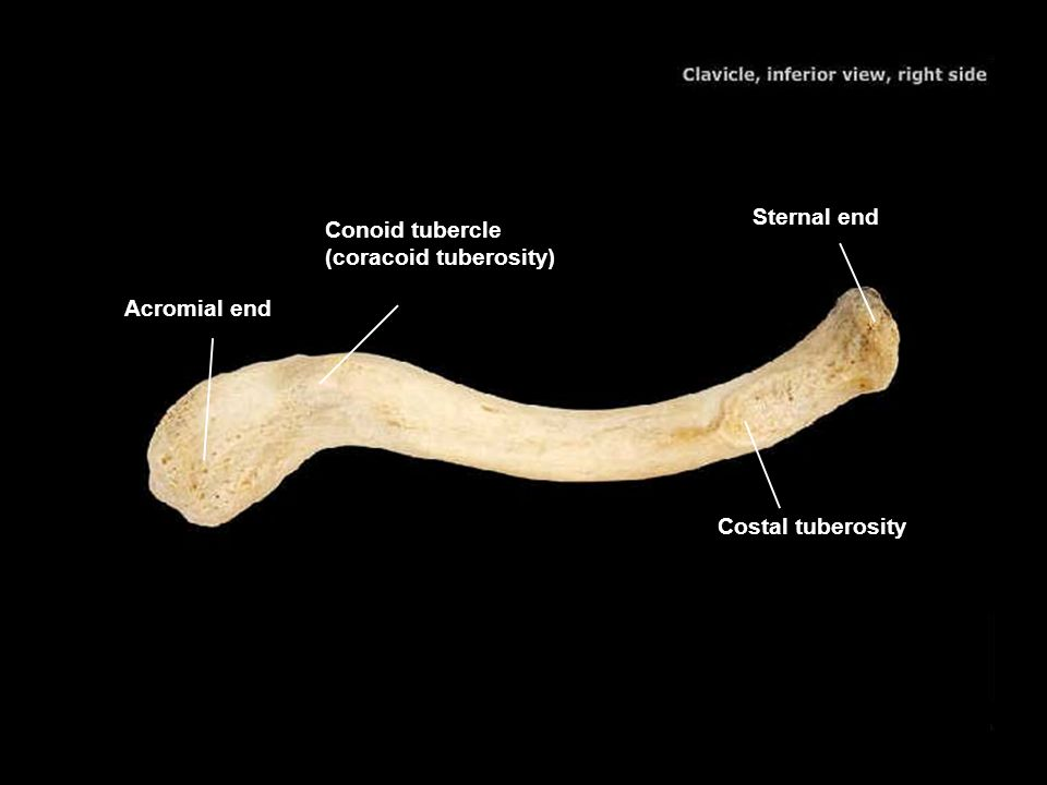 Sternal end Conoid tubercle (coracoid tuberosity) Acromial end Costal tuberosity