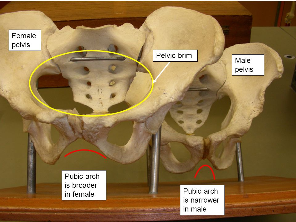 Female pelvis Pelvic brim. Male pelvis. Pubic arch is broader in female.