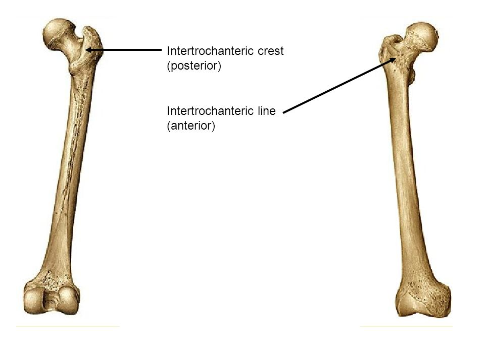Intertrochanteric crest (posterior)