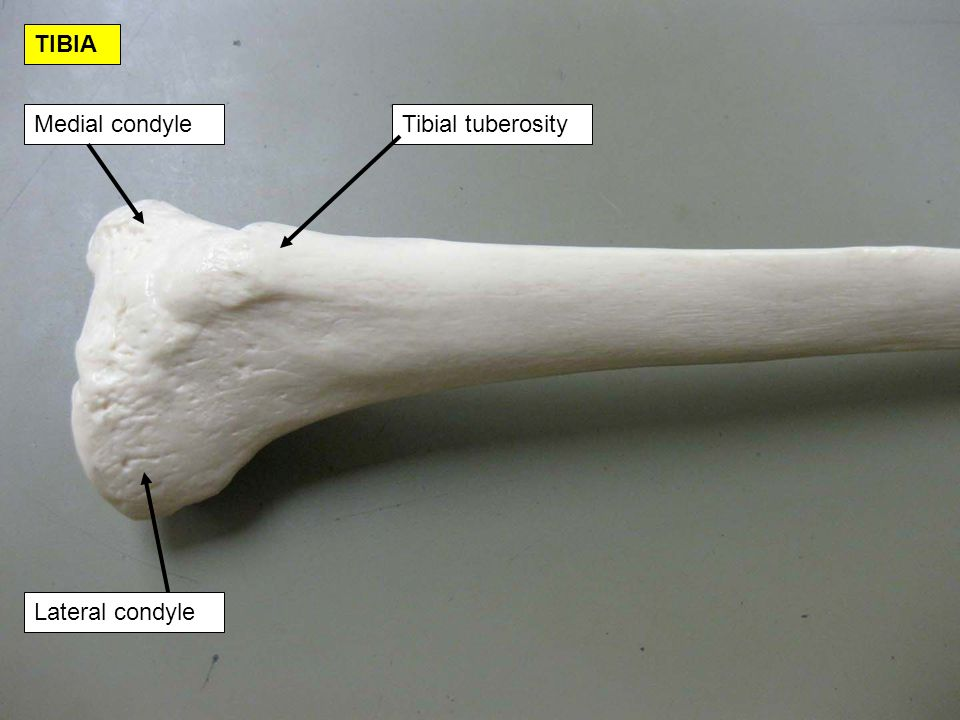 TIBIA Medial condyle Tibial tuberosity Lateral condyle