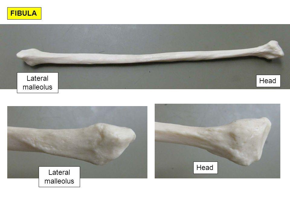 FIBULA Lateral malleolus Head Head Lateral malleolus