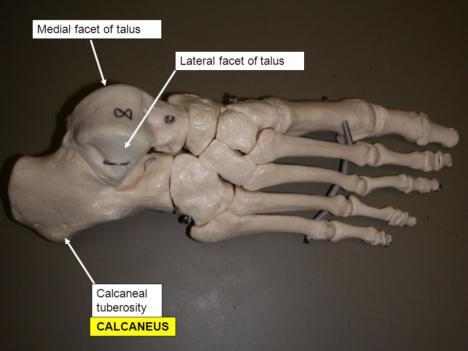Medial facet of talus Lateral facet of talus Calcaneal tuberosity CALCANEUS