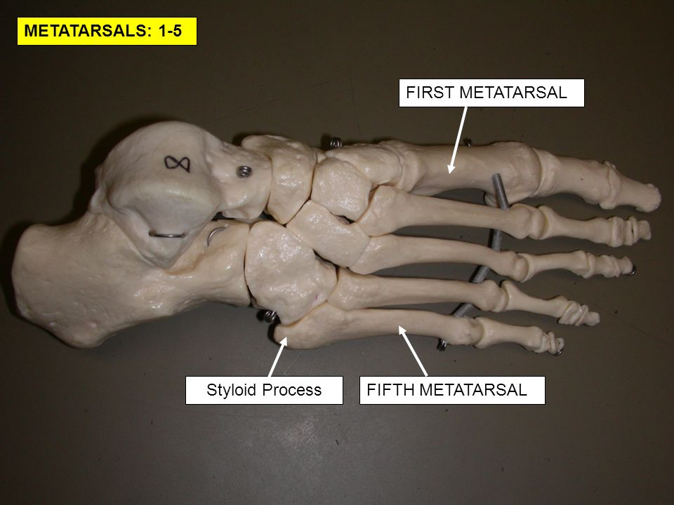 METATARSALS: 1-5 FIRST METATARSAL Styloid Process FIFTH METATARSAL