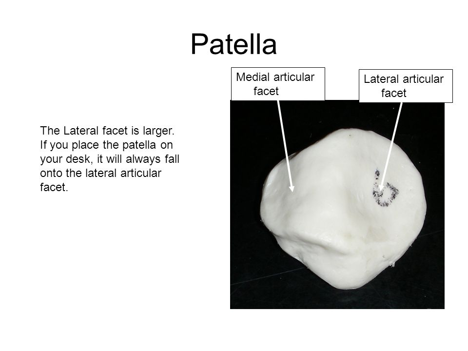 Patella Medial articular facet Lateral articular facet