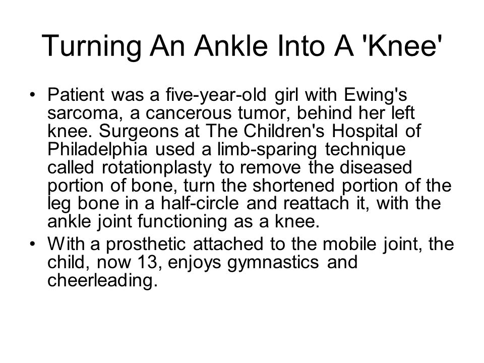 Turning An Ankle Into A Knee
