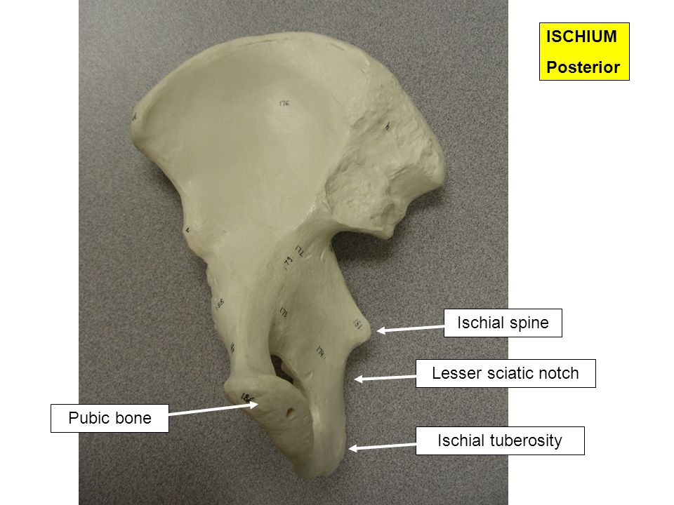 ISCHIUM Posterior Ischial spine Lesser sciatic notch Pubic bone Ischial tuberosity