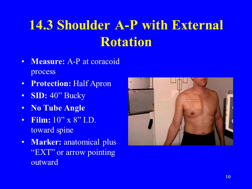14.3 Shoulder A-P with External Rotation