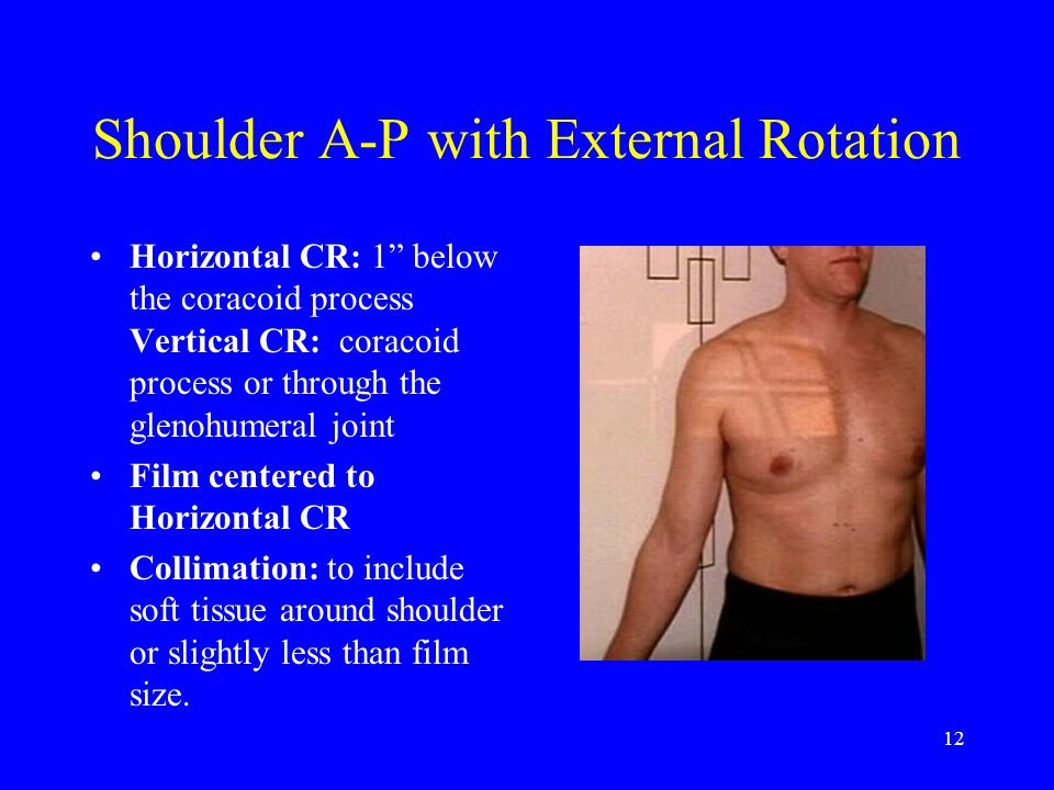 Shoulder A-P with External Rotation
