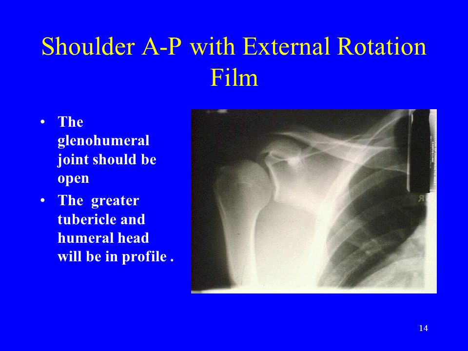 Shoulder A-P with External Rotation Film