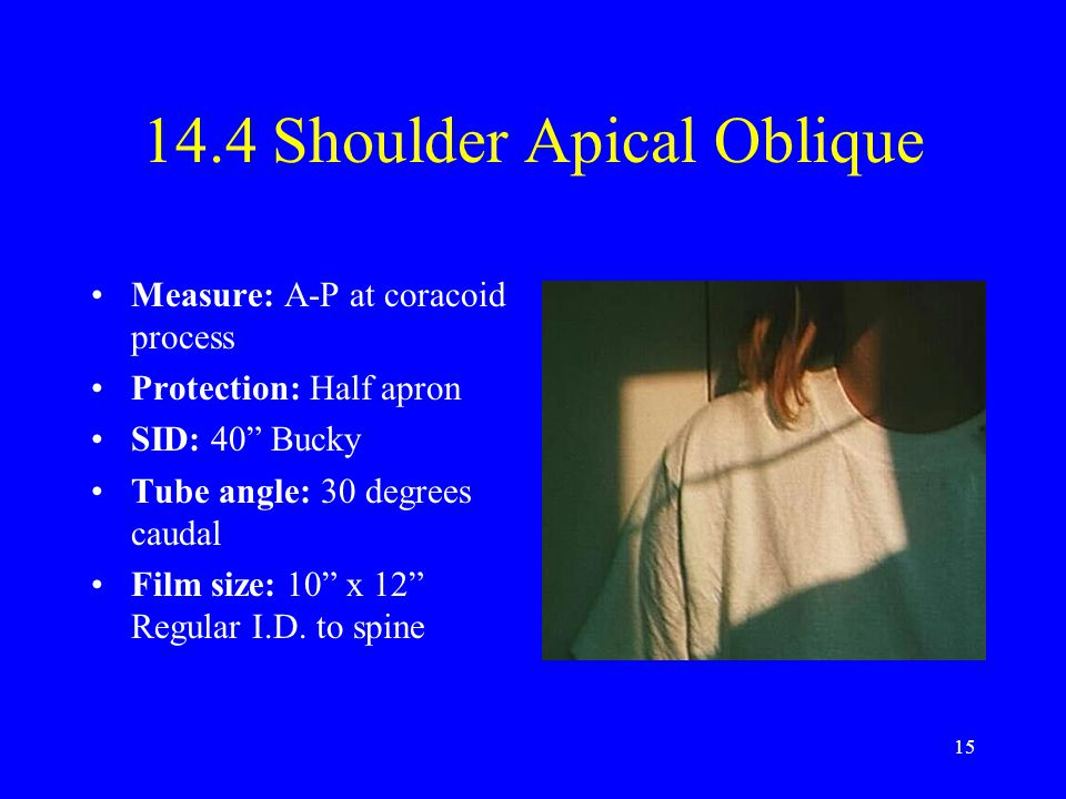 14.4 Shoulder Apical Oblique