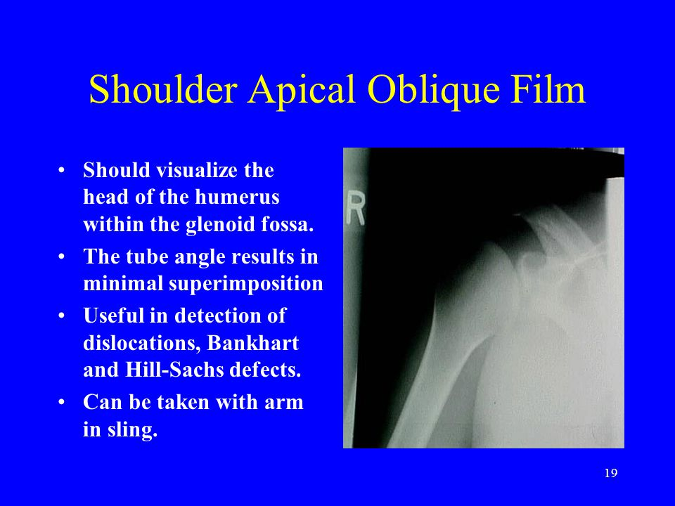 Shoulder Apical Oblique Film