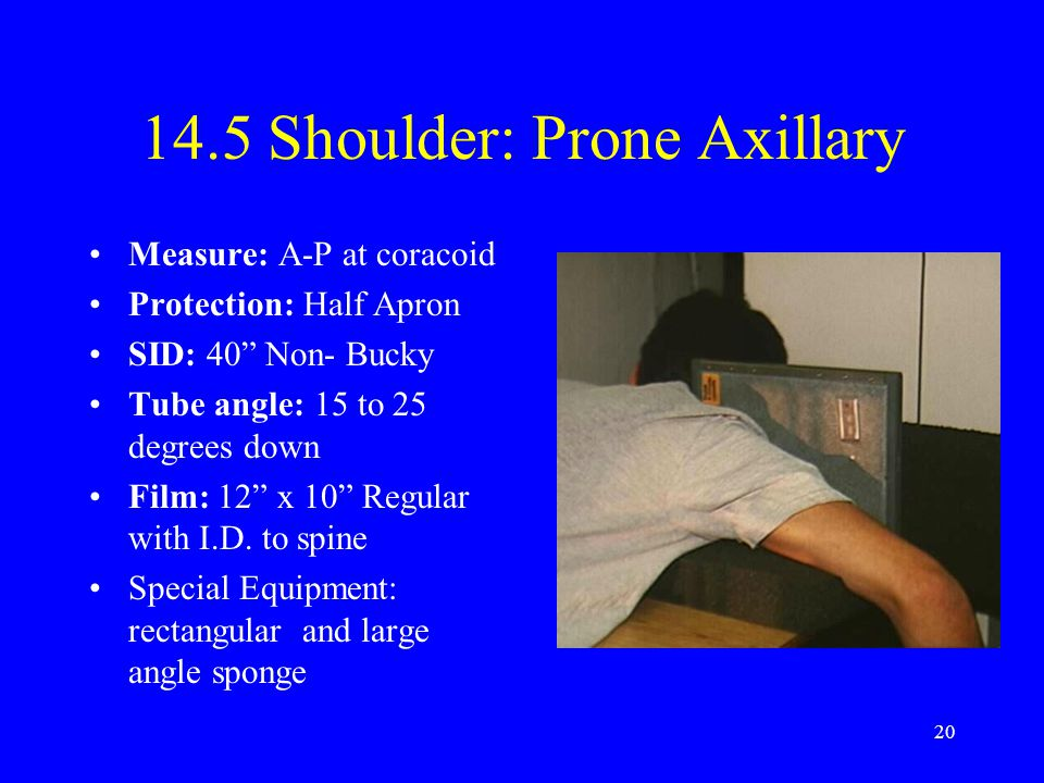 14.5 Shoulder: Prone Axillary