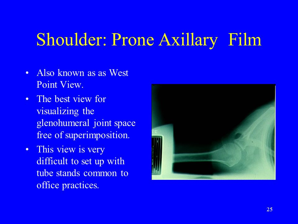 Shoulder: Prone Axillary Film