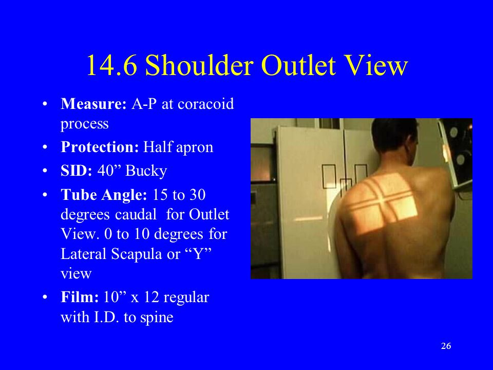 14.6 Shoulder Outlet View Measure: A-P at coracoid process