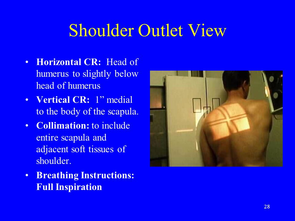 Shoulder Outlet View Horizontal CR: Head of humerus to slightly below head of humerus. Vertical CR: 1 medial to the body of the scapula.