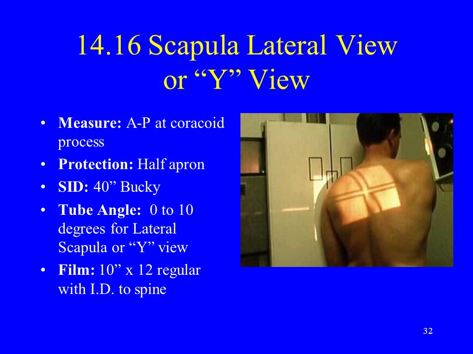 14.16 Scapula Lateral View or Y View